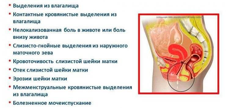Проявление и лечение хламидиоза у женщин