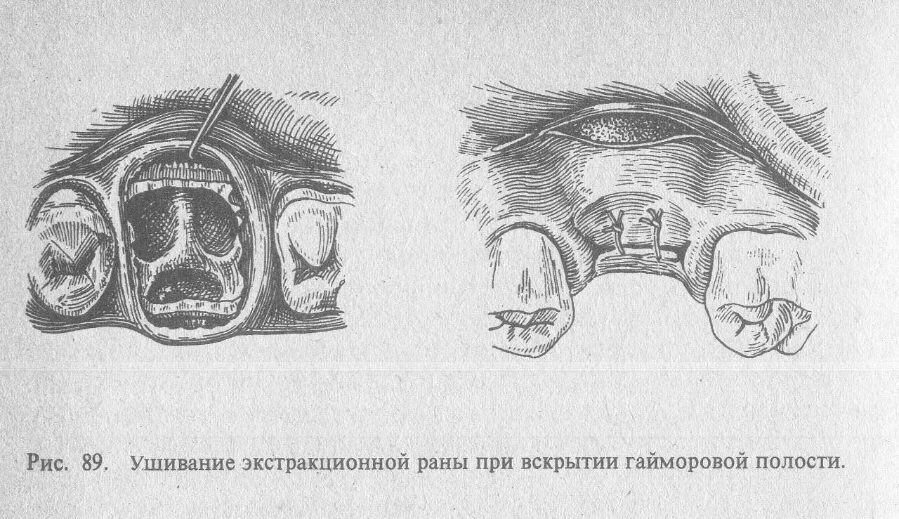 Перфорация гайморовой пазухи – симптомы и лечение