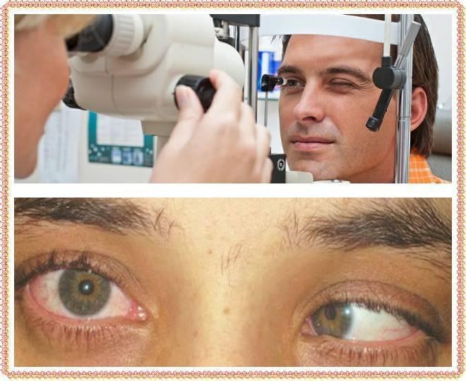 операция по удалению глаза у человека