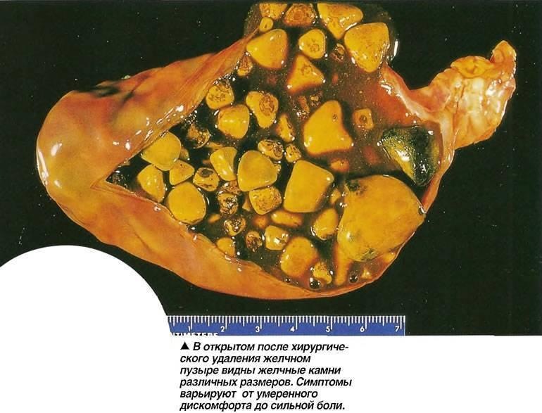 Операция по удалению камней в желчном пузыре: показания, проведение, результат