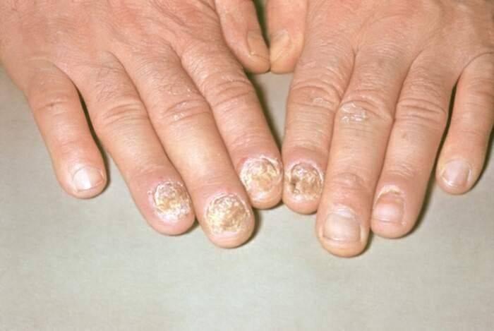 Поражение ногтей псориазом - причины, лечение мазями и народными средствами