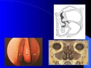 Лечение гиперпластического ринита проверенными способами
