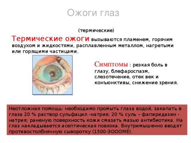 Что делать при ожоге глаз сваркой?