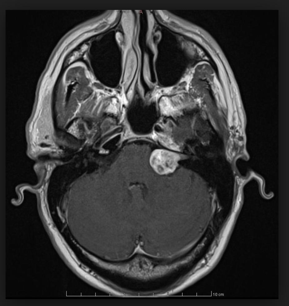 Невринома (шваннома). причины, симптомы и признаки, диагностика, лечение :: polismed.com