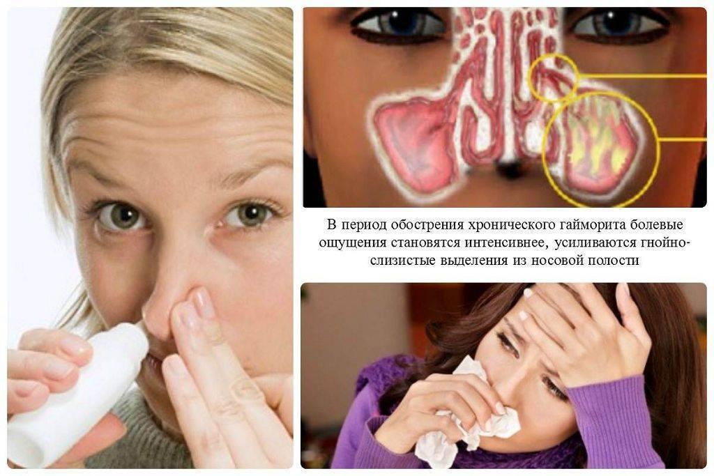 Двусторонний гайморит – лечение у взрослого: как лечить гнойный