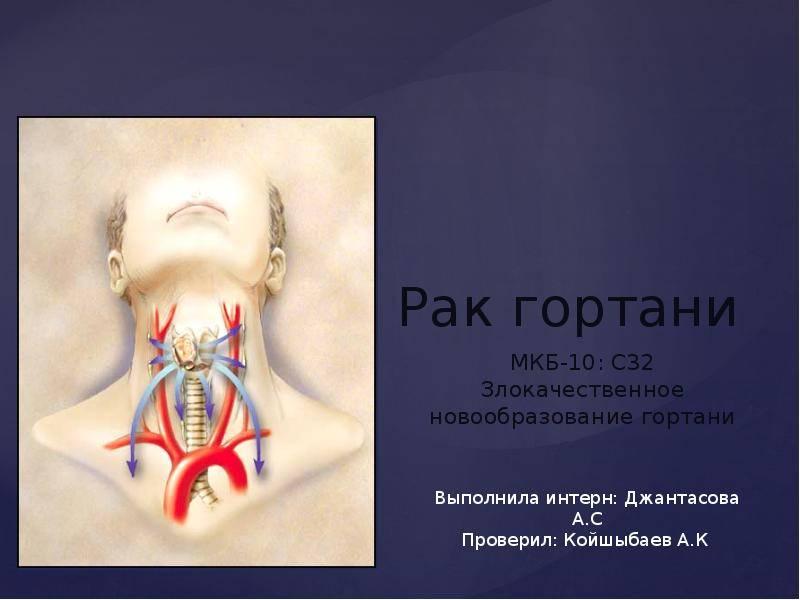Рак горла - первые признаки, фото, лечение и прогноз   здрав-лаб