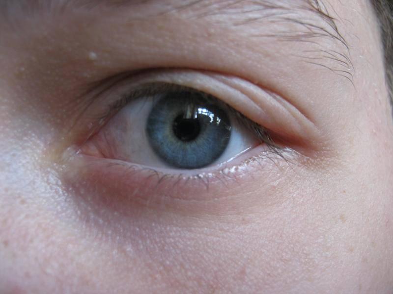 почему болят веки глаз