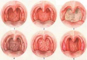 субатрофический фарингит симптомы лечение