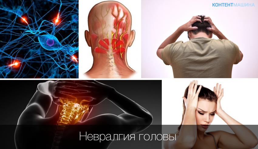 боли при невралгии
