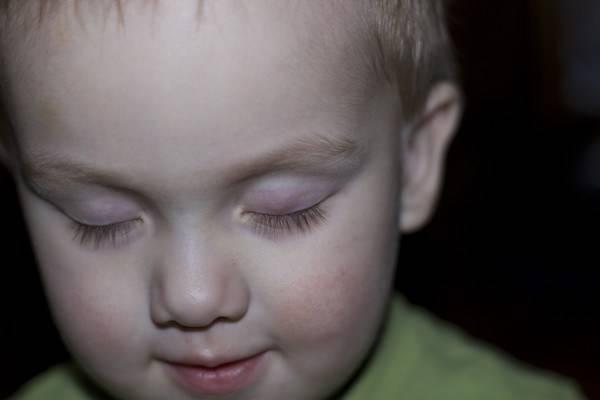 халязион у ребенка причины