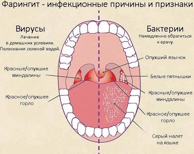 Отличия фарингита и ларингита, их причины и лечение
