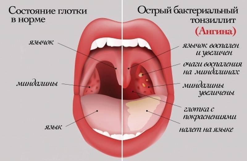 Щекочет в горле и сильный кашель
