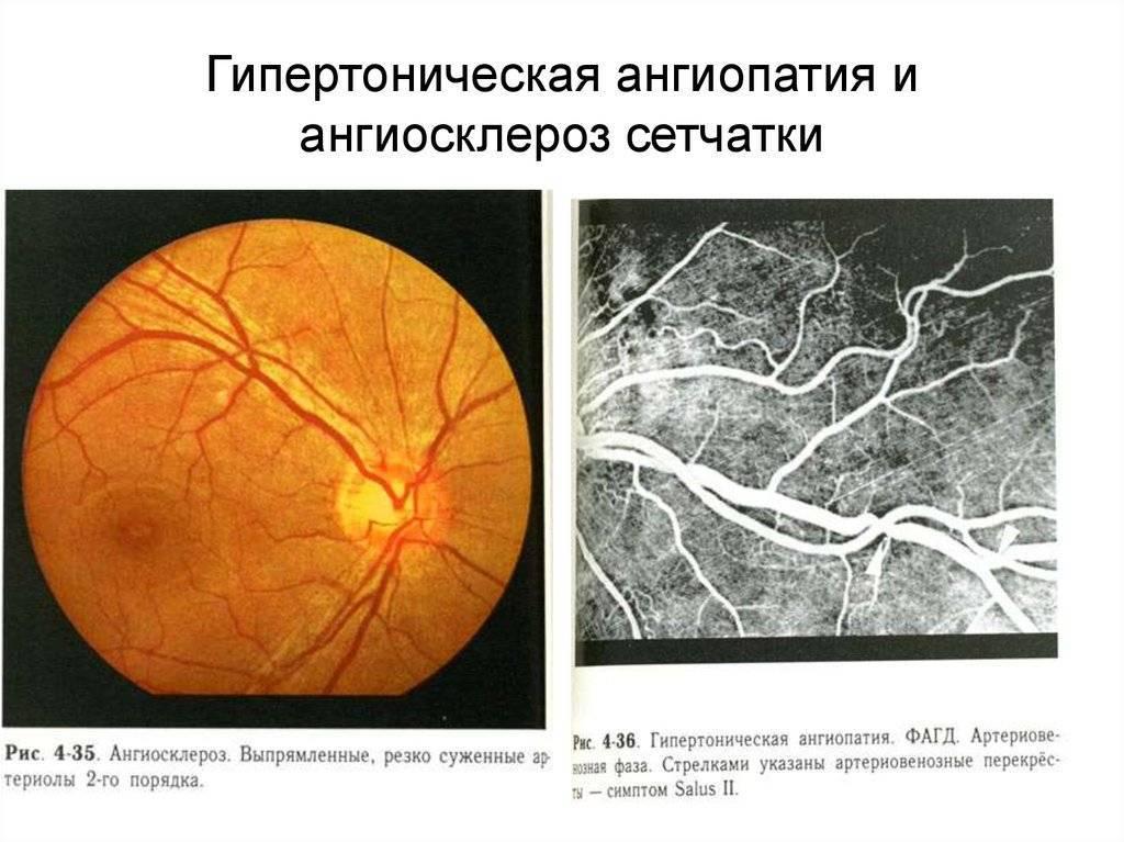 гипертонический ангиосклероз сетчатки