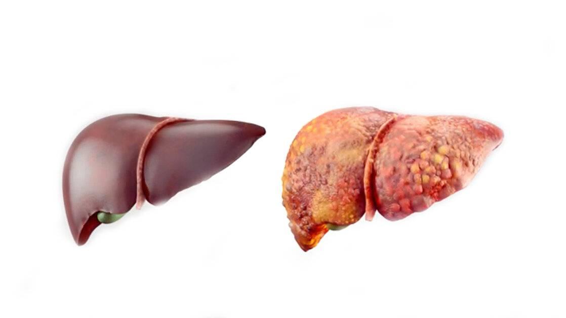 Метастазы в печени при раке