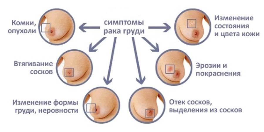 рак молочной железы причины возникновения
