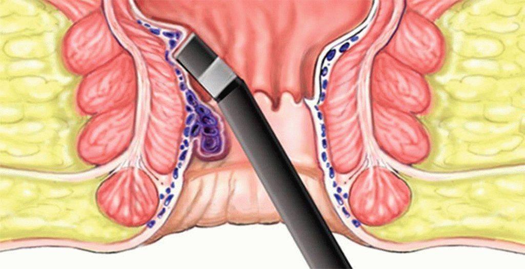 Внутренний геморрой: лечение при кровотечениях