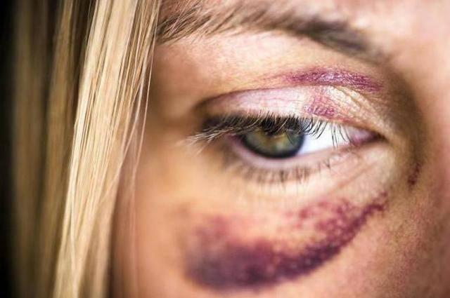 Незамедлительная помощь при ушибе глазного яблока: что делать в первую очередь? диагностика и лечение