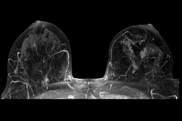 Мрт молочных желез с контрастом, особенности процедуры