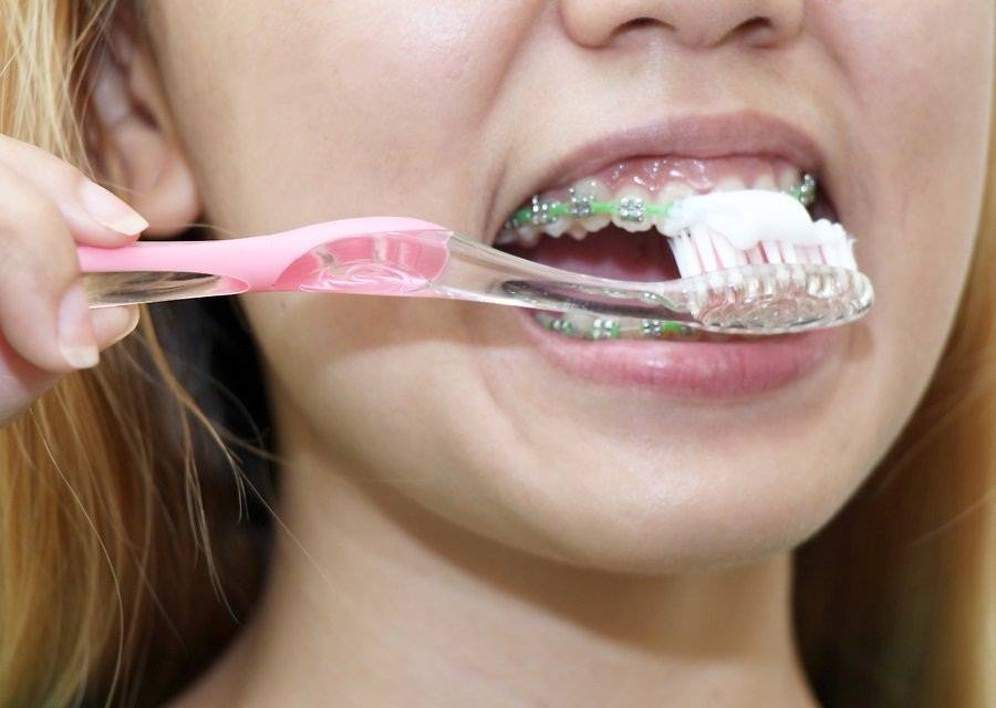 Пластинка на зубах...