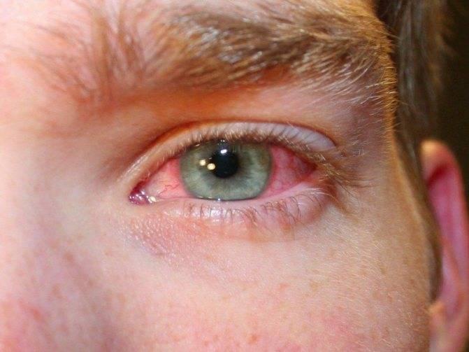 Почему краснеют белки глаз после сна?