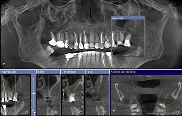 Пломбировочный материал в гайморовой пазухе: удаление, последствия, диагностика
