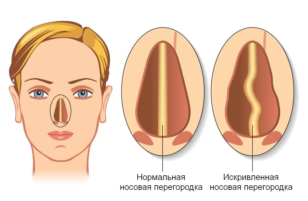 искривленная носовая перегородка
