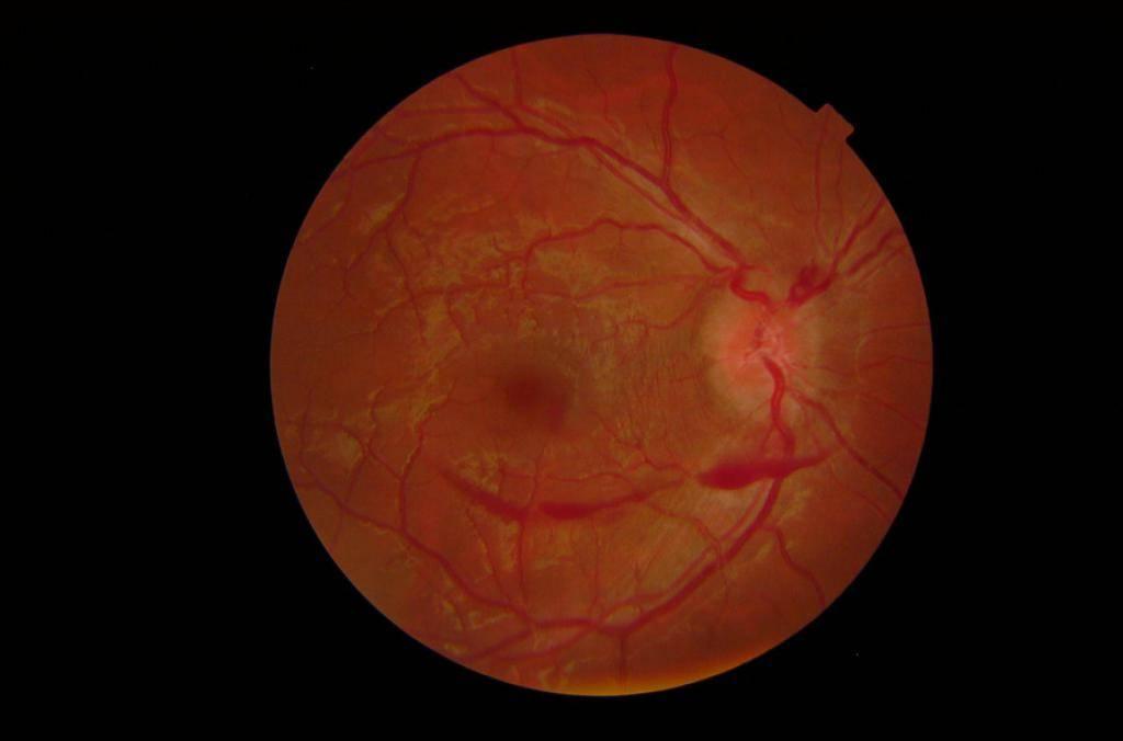 тромбоз цвс глаза лечение