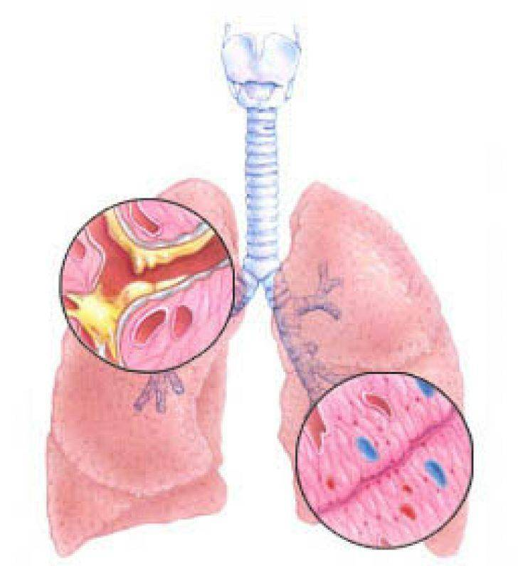 отхаркивающий кашель