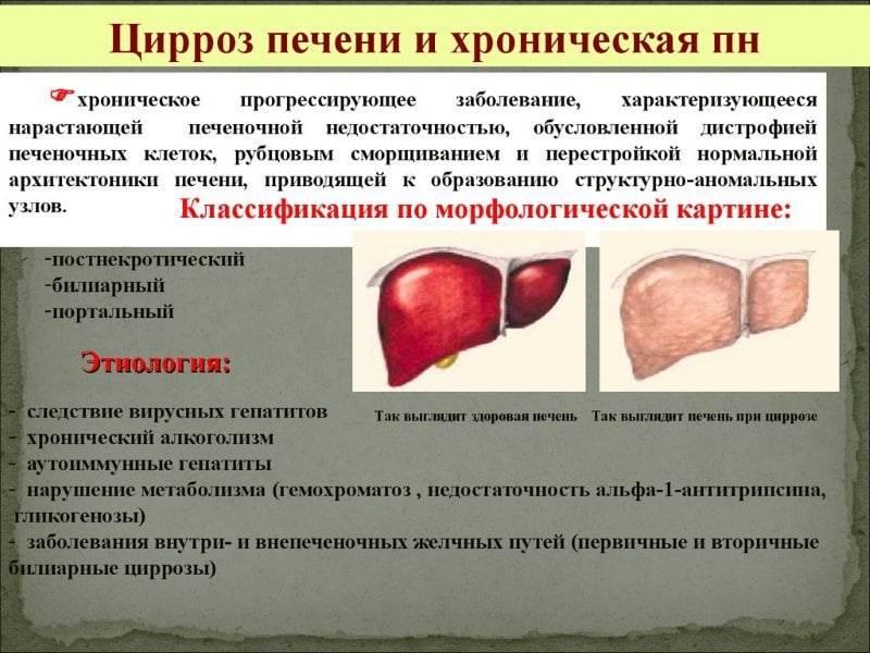 Цирроз печени: что это такое, как проявляется и чем лечить