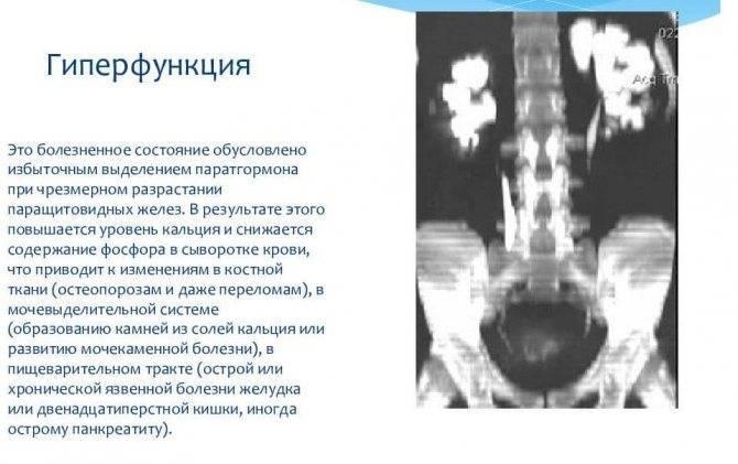 аденома паращитовидной железы операция