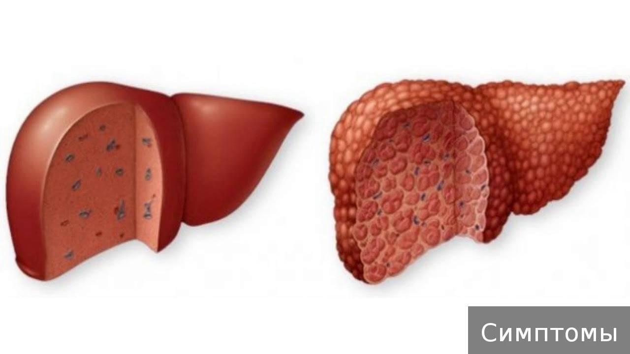 Что такое токсический цирроз печени