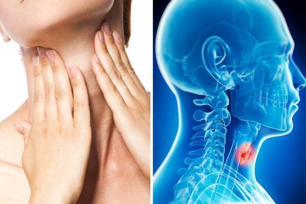 Рак горла — первые признаки, фото, лечение и прогноз