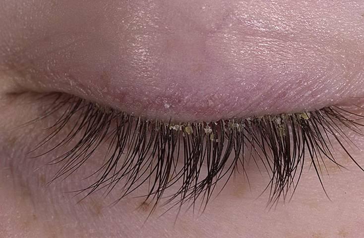 Псориаз глаз: лечение, фото, и чем опасно заболевание века?