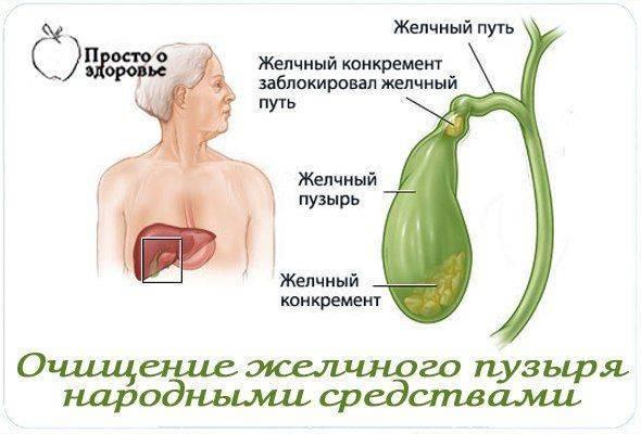 Способы выведения желчи из организма