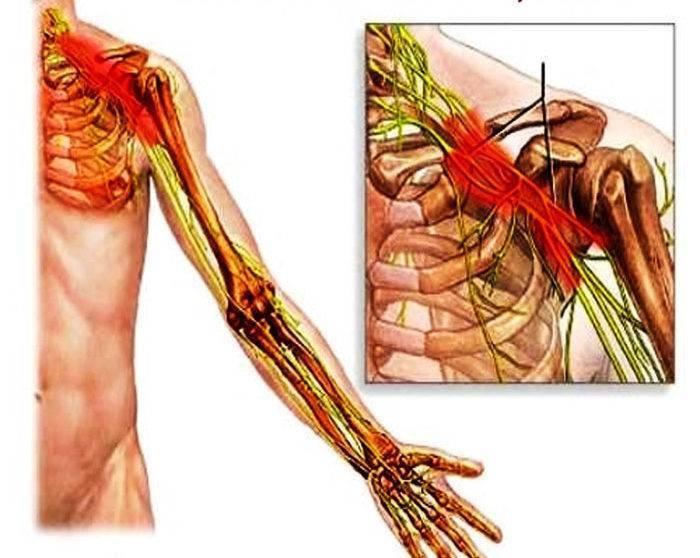 невралгия плечевого нерва симптомы