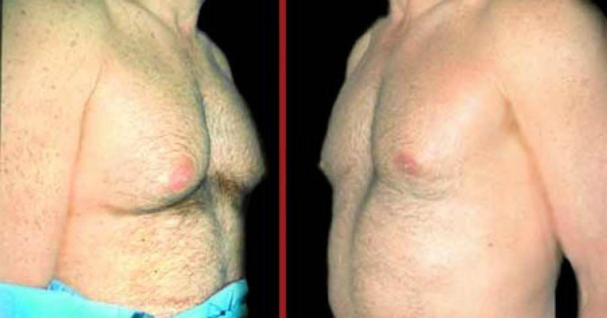 Мастопатия у мужчин — причины, симптомы и лечение