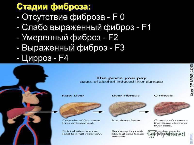 Диета при фиброзе печени 1, 2, 3, 4 степени: особенности и правила питания