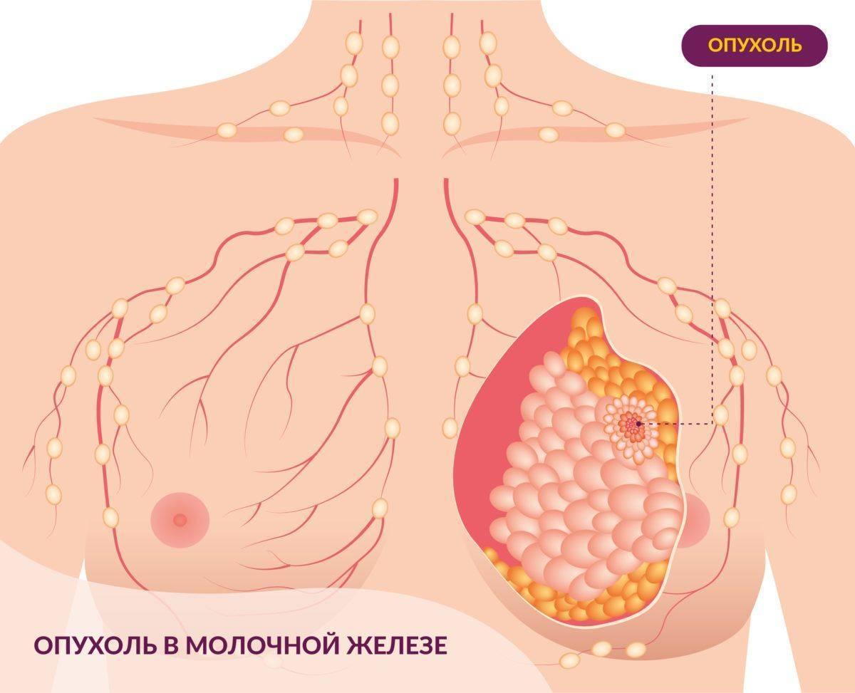 Рак молочной железы – симптомы и лечение