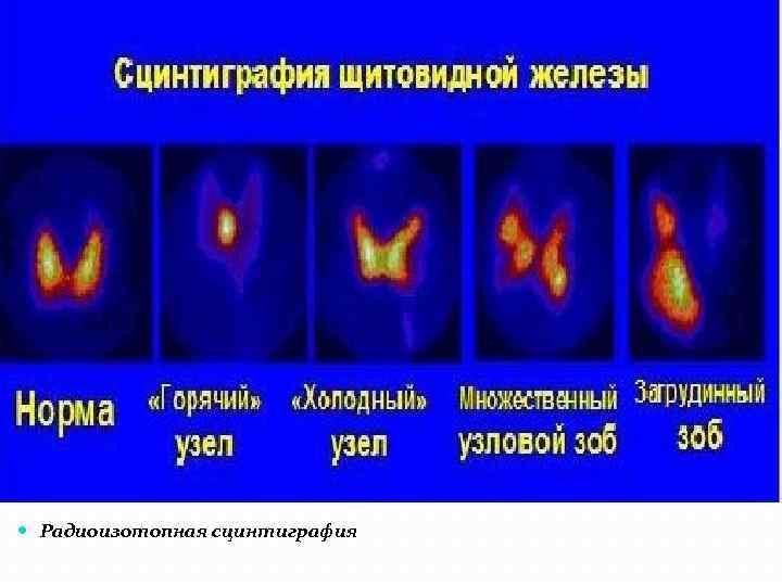 сканирование щитовидной железы подготовка