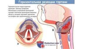 Какие анализы крови показывают рак горла