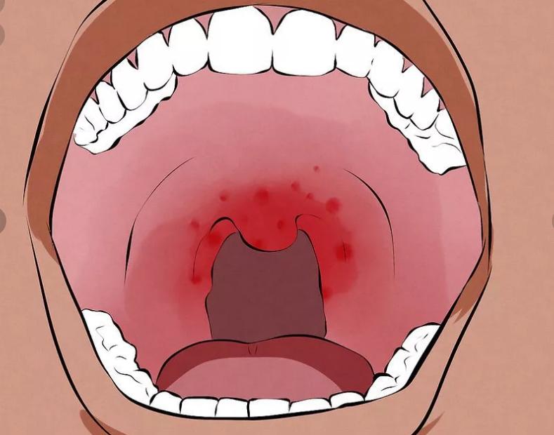 красная сыпь в горле