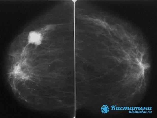 вредна ли маммография