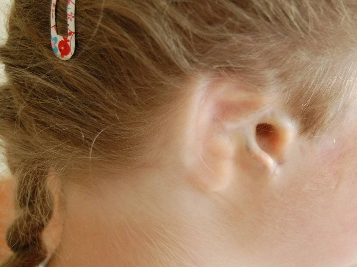 Герпес в ухе: фото, симптомы и лечение, как лечить сыпь за ушами у взрослого и ребенка