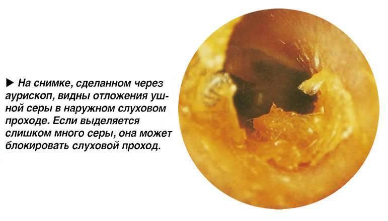 Отит у ребенка: не лечить боль в ухе вовсе и лечить слишком активно – одинаково опасно!