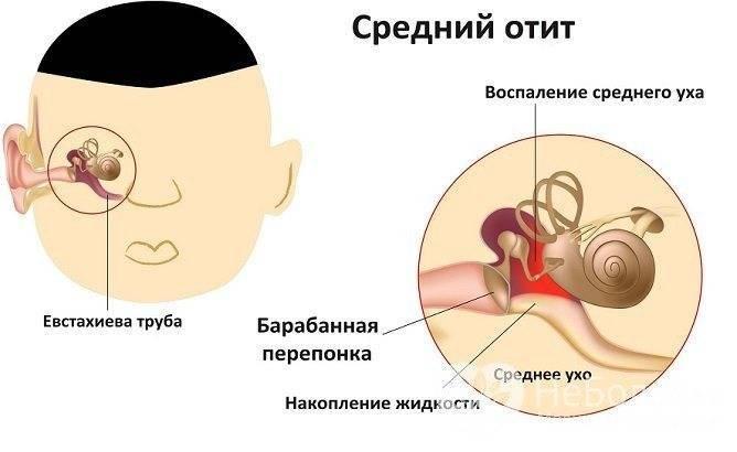 Сильно болит ухо во время беременности