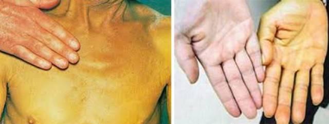 первые симптомы гепатита с у женщин
