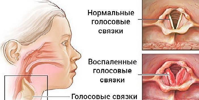 препараты от осиплости голоса у взрослых