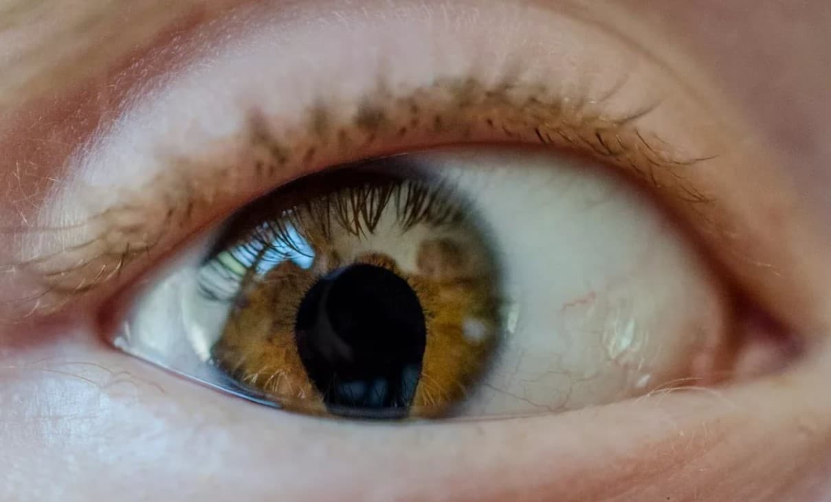 колобома сосудистой оболочки глаза