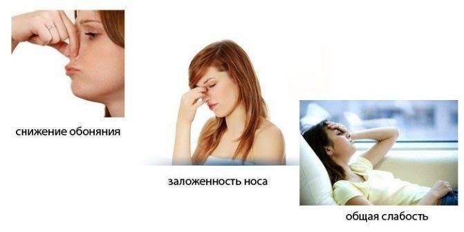 Симптомы и лечение атрофического ринита у взрослых