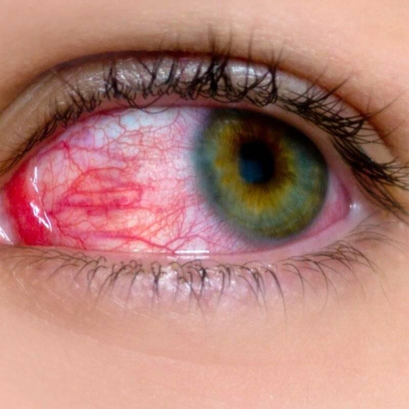 Синдром сухого глаза: народные средства от сухости глаз
